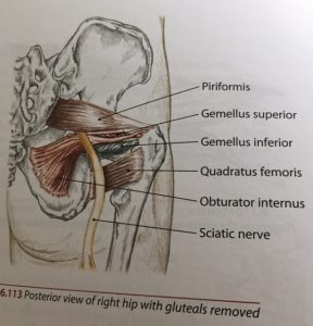 sciatica shooting pain